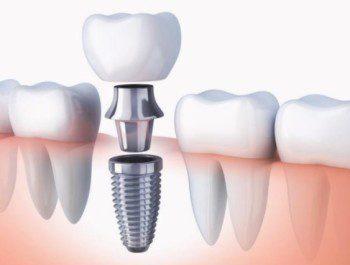 Стоматология в Киеве Swiss-Dent: все технологии имплантации зубов